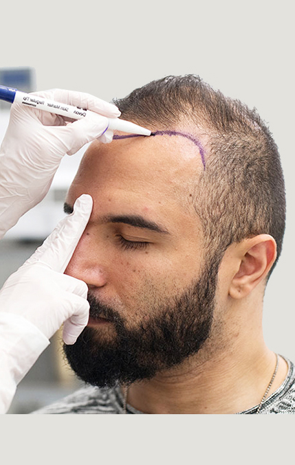 Discover the best hair transplant in Turkey